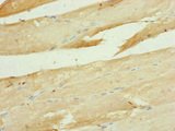 Immunohistochemistry of paraffin-embedded human skeletal muscle tissue at dilution of 1:100
