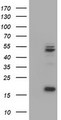 HEK293T cells were transfected with the pCMV6-ENTRY control (Left lane) or pCMV6-ENTRY UQCRC1 (Right lane) cDNA for 48 hrs and lysed. Equivalent amounts of cell lysates (5 ug per lane) were separated by SDS-PAGE and immunoblotted with anti-UQCRC1.