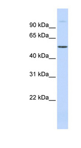 C19orf2 / NNX3 antibody LS-C111293 Western blot of Fetal Muscle lysate.  This image was taken for the unconjugated form of this product. Other forms have not been tested.