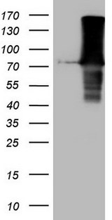 URP2 / FERMT3 Antibody - HEK293T cells were transfected with the pCMV6-ENTRY control. (Left lane) or pCMV6-ENTRY FERMT3. (Right lane) cDNA for 48 hrs and lysed