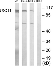 Western blot analysis of lysates from MCF-7, HeLa, and Jurkat cells, using USO1 Antibody. The lane on the right is blocked with the synthesized peptide.