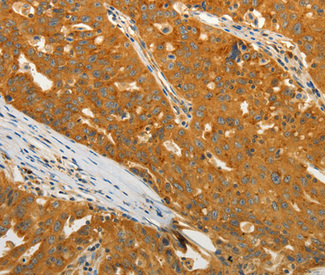 Immunohistochemistry of paraffin-embedded human ovarian cancer tissue.