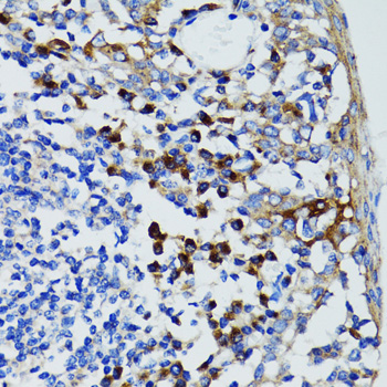 Immunohistochemistry of paraffin-embedded human tonsil tissue.