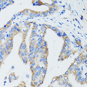 Immunohistochemistry of paraffin-embedded human gastric cancer tissue.