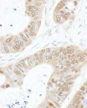 USP14 Antibody - Detection of Human USP14 by Immunohistochemistry : Formalin-Fixed, Paraffin-Embedded (FFPE)