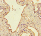 Immunohistochemistry of paraffin-embedded human prostate cancer using USP14 Antibody at dilution of 1:100