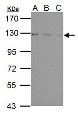 Sample (30 ug of whole cell lysate). A: NIH-3T3, B: JC, C: BCL-1. 7.5% SDS PAGE. USP15 antibody diluted at 1:1000.
