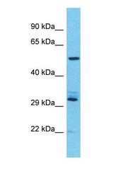 USP17L7 Antibody - Western blot of USP17L7 Antibody with human NCI-H226 Whole Cell lysate.  This image was taken for the unconjugated form of this product. Other forms have not been tested.