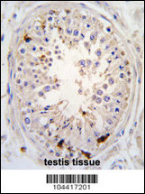 Formalin-fixed and paraffin-embedded human testis tissue reacted with USP2 antibody (C-term L523), which was peroxidase-conjugated to the secondary antibody, followed by DAB staining. This data demonstrates the use of this antibody for immunohistochemistry; clinical relevance has not been evaluated.