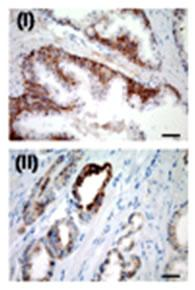 USP2 Antibody - IHC for USP2a in a formalin-fixed, paraffin-embedded human prostate sample. Cytoplasmic positive immunostaining was detected in tumor glands (ii), whereas in normal prostatic epithelium, USP2a expression was restricted to the basal layer.
