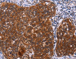Immunohistochemistry of paraffin-embedded Human thyroid cancer using USP2 Polyclonal Antibody at dilution of 1:40.