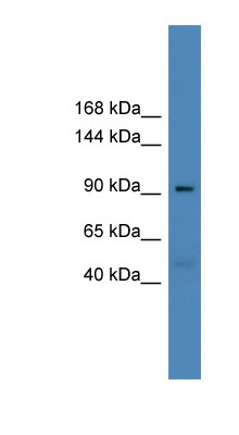 USP20 antibody LS-C116883 Western blot of Fetal Heart lysate.  This image was taken for the unconjugated form of this product. Other forms have not been tested.