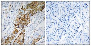 IHC of paraffin-embedded human breast carcinoma tissue, using USP32 Antibody. The picture on the right is treated with the synthesized peptide.