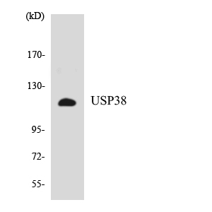 Western blot analysis of the lysates from HepG2 cells using USP38 antibody.