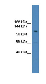 USP38 antibody LS-C116830 Western blot of HepG2 cell lysate.  This image was taken for the unconjugated form of this product. Other forms have not been tested.
