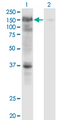 Western Blot analysis of USP4 expression in transfected 293T cell line by USP4 monoclonal antibody (M01), clone 5E12.Lane 1: USP4 transfected lysate (Predicted MW: 108.6 KDa).Lane 2: Non-transfected lysate.