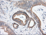 IHC of paraffin-embedded Adenocarcinoma of Human colon tissue using anti-USP5 mouse monoclonal antibody. (Dilution 1:50).