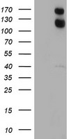 HEK293T cells were transfected with the pCMV6-ENTRY control (Left lane) or pCMV6-ENTRY USP7 (Right lane) cDNA for 48 hrs and lysed. Equivalent amounts of cell lysates (5 ug per lane) were separated by SDS-PAGE and immunoblotted with anti-USP7.