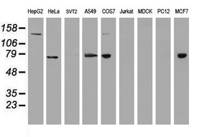 USP7 / HAUSP Antibody - Western blot of extracts (35ug) from 9 different cell lines by using anti-USP7 monoclonal antibody.