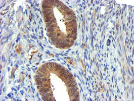 USP7 / HAUSP Antibody - IHC of paraffin-embedded Human endometrium tissue using anti-USP7 mouse monoclonal antibody. (Heat-induced epitope retrieval by 10mM citric buffer, pH6.0, 100C for 10min).