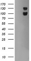 USP7 / HAUSP Antibody - HEK293T cells were transfected with the pCMV6-ENTRY control (Left lane) or pCMV6-ENTRY USP7 (Right lane) cDNA for 48 hrs and lysed. Equivalent amounts of cell lysates (5 ug per lane) were separated by SDS-PAGE and immunoblotted with anti-USP7.