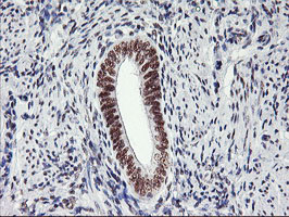 USP7 / HAUSP Antibody - IHC of paraffin-embedded Human endometrium tissue using anti-USP7 mouse monoclonal antibody.