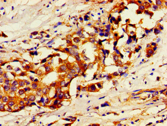 USP7 / HAUSP Antibody - Immunohistochemistry image of paraffin-embedded human breast cancer at a dilution of 1:100