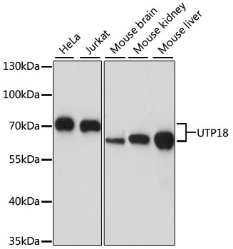 UTP18 Antibody - Western blot analysis of extracts of various cell lines, using UTP18 antibody at 1:1000 dilution. The secondary antibody used was an HRP Goat Anti-Rabbit IgG (H+L) at 1:10000 dilution. Lysates were loaded 25ug per lane and 3% nonfat dry milk in TBST was used for blocking. An ECL Kit was used for detection and the exposure time was 30s.