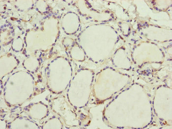 Immunohistochemistry of paraffin-embedded human thyroid tissue at dilution of 1:100