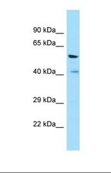 Western blot of Human COLO205. VN1R1 antibody dilution 1.0 ug/ml.  This image was taken for the unconjugated form of this product. Other forms have not been tested.
