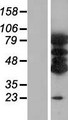 VAC14 / TRX Protein - Western validation with an anti-DDK antibody * L: Control HEK293 lysate R: Over-expression lysate