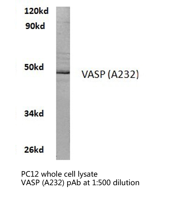 Western blot of VASP (A232) pAb in extracts from PC12 cells.