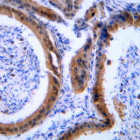 VASP Antibody - Immunohistochemical analysis of VASP staining in human tonsil formalin fixed paraffin embedded tissue section. The section was pre-treated using heat mediated antigen retrieval with sodium citrate buffer (pH 6.0). The section was then incubated with the antibody at room temperature and detected using an HRP conjugated compact polymer system. DAB was used as the chromogen. The section was then counterstained with hematoxylin and mounted with DPX.