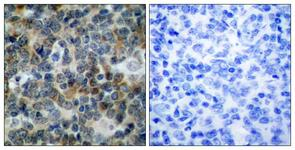 IHC of paraffin-embedded human tonsil, using VASP (Phospho-Ser238) Antibody. The picture on the right is treated with the synthesized peptide.