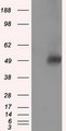 HEK293T cells were transfected with the pCMV6-ENTRY control (Left lane) or pCMV6-ENTRY VAT1L (Right lane) cDNA for 48 hrs and lysed. Equivalent amounts of cell lysates (5 ug per lane) were separated by SDS-PAGE and immunoblotted with anti-VAT1L.