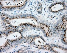 VAT1L Antibody - Immunohistochemical staining of paraffin-embedded Adenocarcinoma of colon tissue using anti-VAT1L mouse monoclonal antibody. (Dilution 1:50).