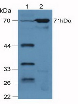 Western Blot; Sample: Lane1: Mouse Lung Tissue; Lane2: Mouse Kidney Tissue.