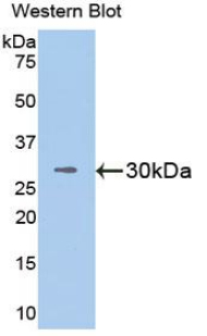 Western blot of recombinant VCAM1 / VCAM-1 / CD106.  This image was taken for the unconjugated form of this product. Other forms have not been tested.