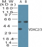VDAC2+3 Antibody - Western blot of VDAC2/3 in human brain cell lysate in the A) absence and B) presence of immunizing peptide using Polyclonal Antibody to VDAC2/3 at 2 ug/ml. The approximately 55 kD band is not blocked by the immunizing peptide and is believed to result from non-specific cross-reaction.
