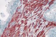 Prostate: Smooth muscle actin (m), ImmPRESS™ Anti-Mouse Ig Kit, AEC Substrate Kit (red). Hematoxylin QS counterstain (blue). Mounted in VectaMount AQ Mounting Medium.