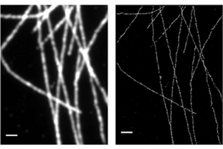 Stochastic optical reconstruction microscopy