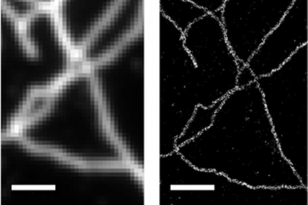 Stochastic optical reconstruction microscopy Image