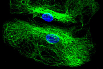 Astrocytes: Stained for GFAP and detected with DyLight® 488 labeled secondary antibody. Mounted in VECTASHIELD® HardSet Mounting Medium with DAPI. Image courtesy of Dr Emma East, Department of Life Sciences, The Open University, U.K.