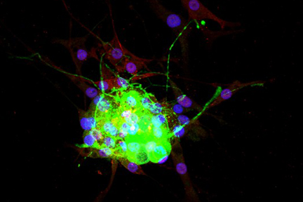 Dorsal root ganglia cells (neurons and satellite glia) - double label. BIII tubulin, DyLight® 488 labeled secondary antibody (green). S100, DyLight® 594 labeled secondary antibody (red). Mounted in VECTASHIELD® HardSet Mounting Medium with DAPI.