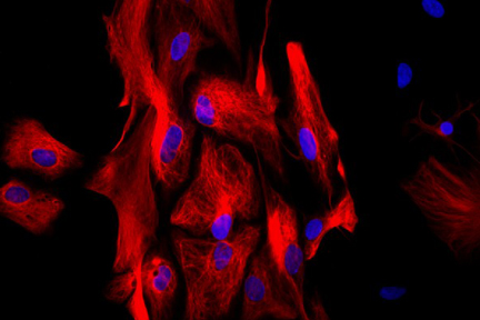 Astrocytes: Stained for GFAP and detected with DyLight® 549 labeled secondary antibody. Mounted in VECTASHIELD® HardSet Mounting Medium with DAPI. Image courtesy of Dr Emma East, Department of Life Sciences, The Open University, U.K.