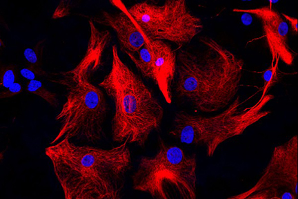 Astrocytes: Stained for GFAP and detected with DyLight® 594 labeled secondary antibody. Mounted in VECTASHIELD® HardSet Mounting Medium with DAPI. Image courtesy of Dr Emma East, Department of Life Sciences, The Open University, U.K.