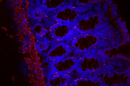 Colon: Desmin (m), Biotinylated Horse anti-mouse IgG, Texas Red®Avidin DCS (red). Mounted in VECTASHIELD® HardSet Mounting Medium with DAPI.
