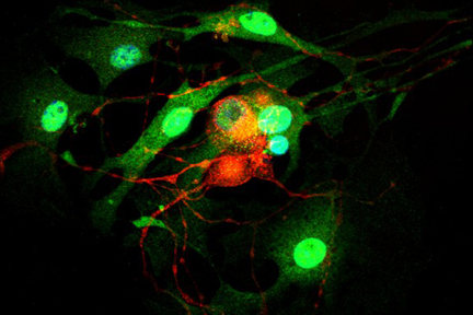 Dorsal root ganglia cells (neurons and satellite glia) - double label. BIII tubulin, DyLight® 594 labeled secondary antibody (red). S100, DyLight® 488 labeled secondary antibody (green). Mounted in VECTASHIELD® HardSet Mounting Medium with DAPI.