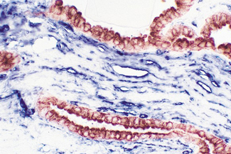 Tumor (double label): Cytokeratin, VECTASTAIN® Elite® ABC Kit, Vector® NovaRED® (red) substrate. CD34, VECTASTAIN® ABC-AP Kit, BCIP/NBT (blue) substrate.