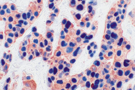 Tumor (double label): p53 (m), VECTASTAIN® ABC-AP Kit, Vector Blue™ substrate (blue); Multi-Cytokeratin (m), VECTASTAIN® Elite® ABC Kit, AEC substrate (red).